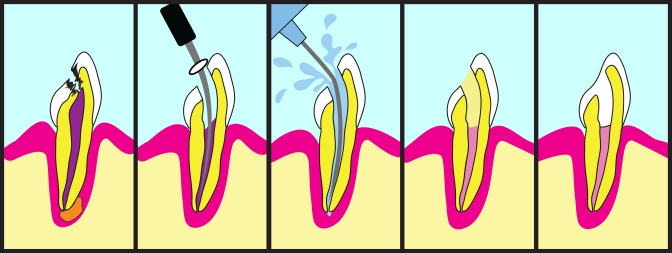 Root Canal Treatment, Dentists, Brampton, Dental Offices,