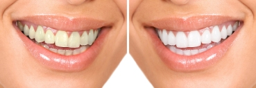 Brampton Teeth Whitening, Dentists in Brampton, Dentists, Healthy Smiles,