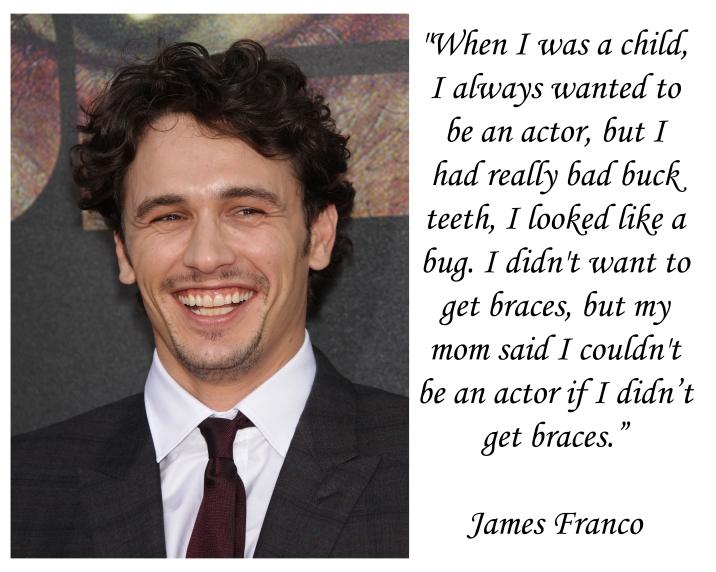 JAMES FRANCO on Braces, Brampton Dentists, Dental Offices in Brampton, Invisalign Braces,